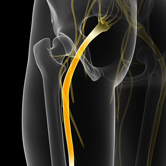 Sciatica | Sacramento Applied Kinesiology